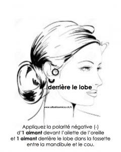acouphène, sifflement d'oreille