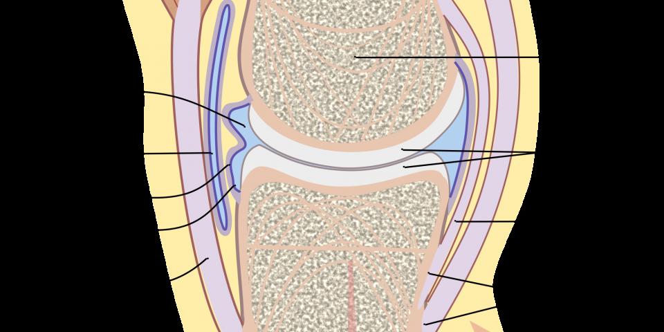 artrosi, cartilagine infiammata , dolore, rimedi naturali