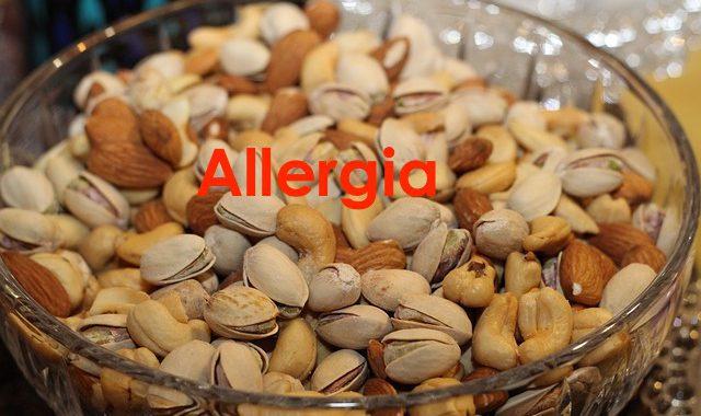 Come spiegare le allergie alimentari: I movimenti degli elettroni negli alimenti o altre sostanze organiche possono variare nella loro velocità e direzione. Spesso si muovono in senso anti-orario.
