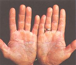 psoriasis - remedios naturales